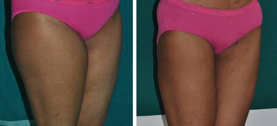 Liposuction of thighs