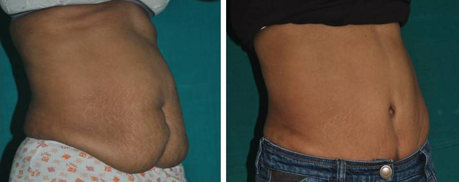 photo of abdominoplasty in Kerala