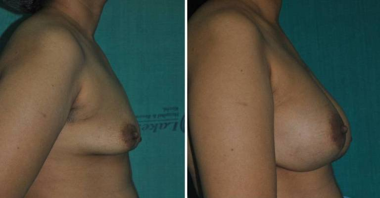 Breast implant surgery in Kerala