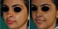 Rhinoplasty and chin augmentation India