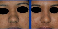 Rhinoplasty result in Kerala, India