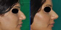 Drooping nose tip surgery, India