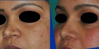small nose rhinoplasty Kerala