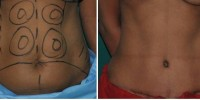 Tummy tuck in Kerala