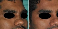 Nose implant in Kerala