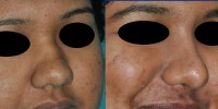 cosmetic surgery of nose, India