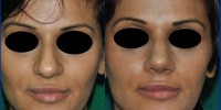 wide tip of nose corrected by Rhinoplasty, India