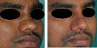 Rhinoplasty for broad nose in Kerala