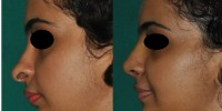 Nose and chin surgery Kerala