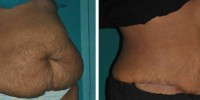 Tummy shape correction after pregnancy in Kerala, India