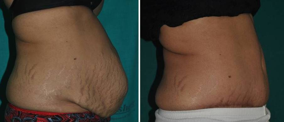 Abdominoplasty and hernia repair in India