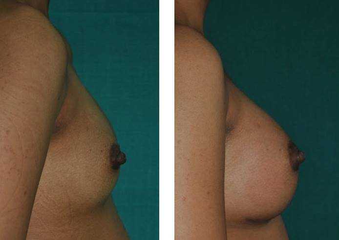 Best result after breast enlargement in Kerala