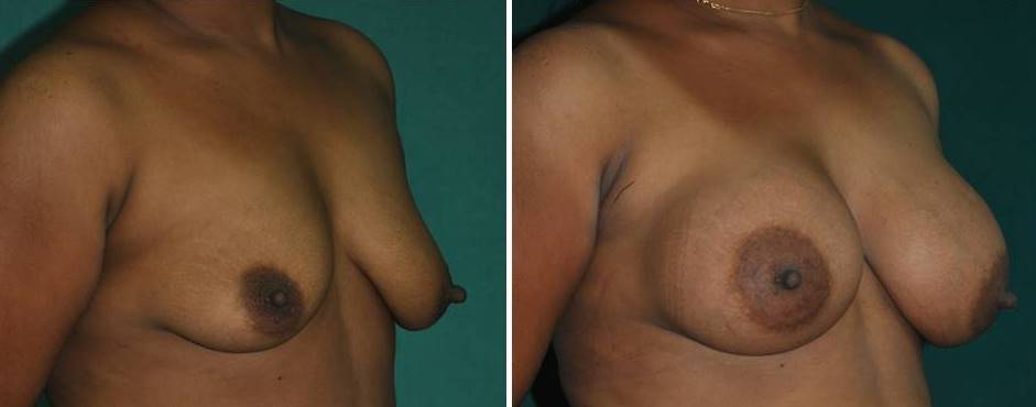 Breast enlargement cosmetic surgery in India