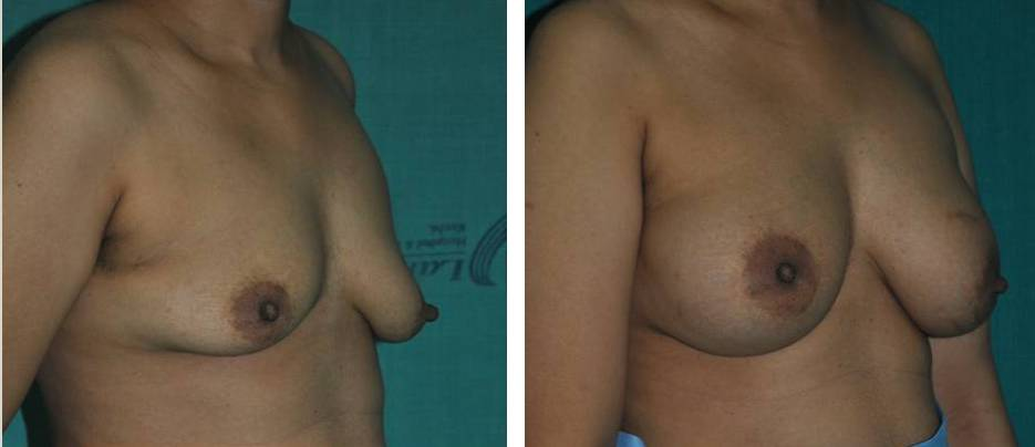 Breast lift using silicone implants in India