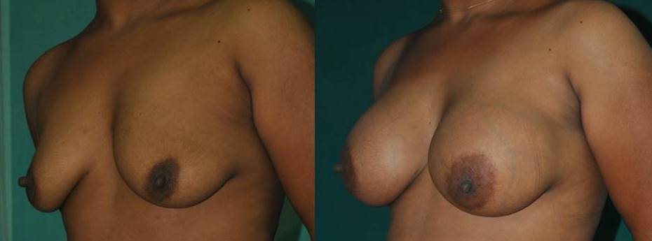 Breast implant result in India