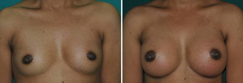 Result after breast implant surgery in Kerala