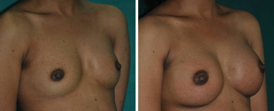 Breast implant surgery result in Cochin