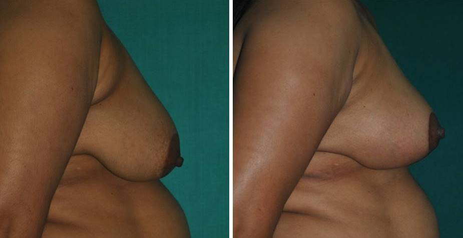 Breast lift for mommy makeover in Kerala