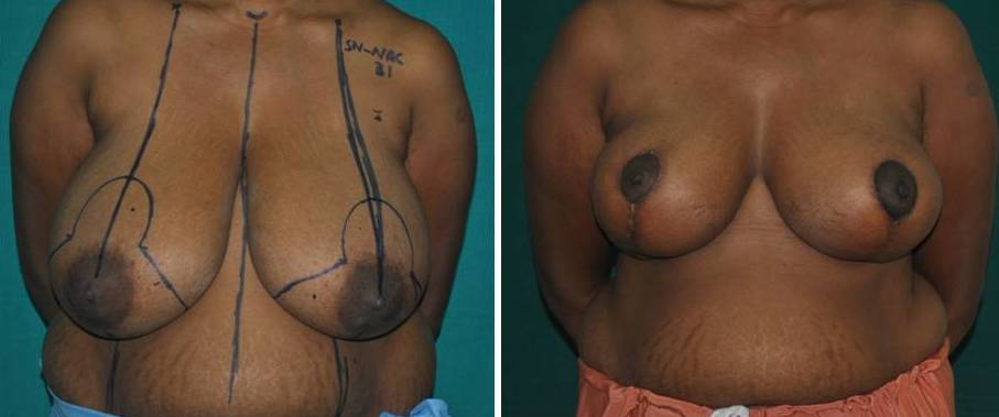 Breasts reduction surgery in Cochin, India