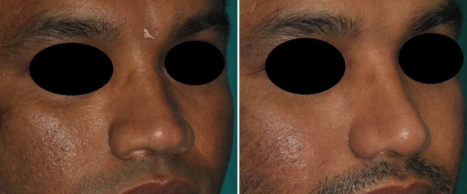 Cosmetic surgery of nose Ernakulam