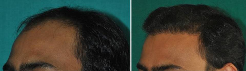 Follicle transfer in Kerala, India