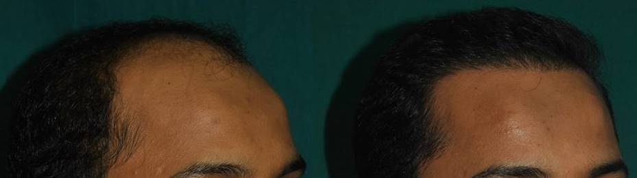 FUT hair transplant in Cochin