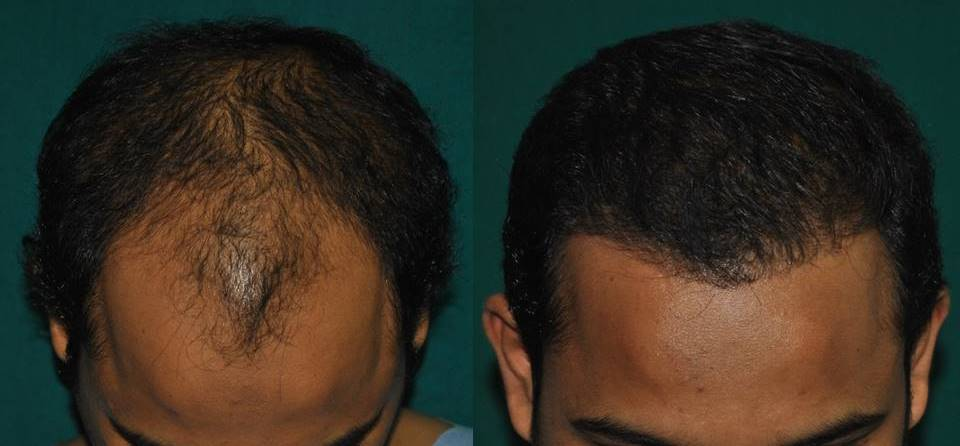 Hair transplant in Ernakulam by FUT
