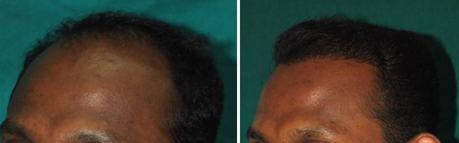 Good result after hair transplant in India