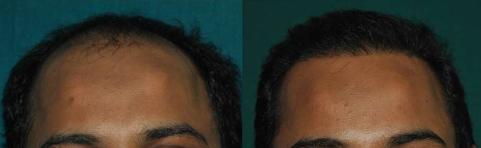 Good result of hair transplant in Kerala