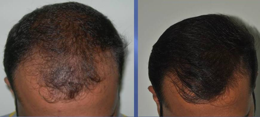 Hair fall treatment in Kerala