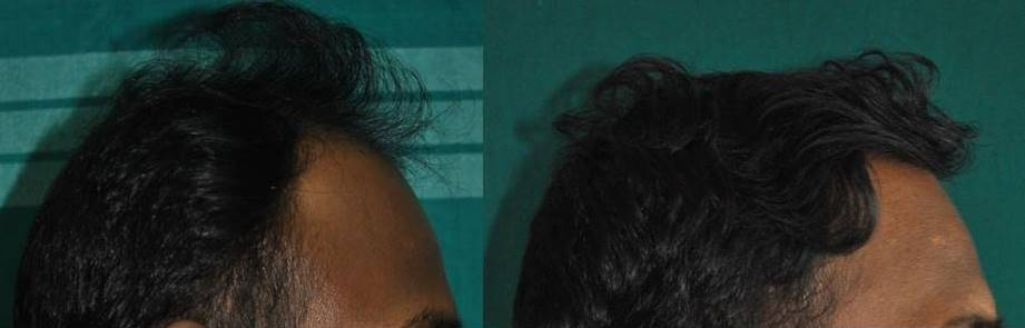 Hair implant in Ernakulam