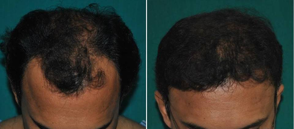 Hair implant photo, Kerala, India
