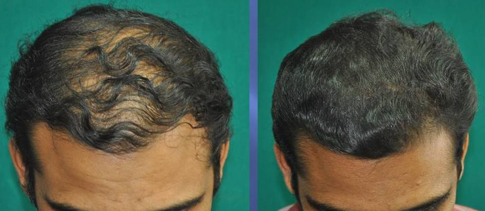 Medicines for hair loss in men