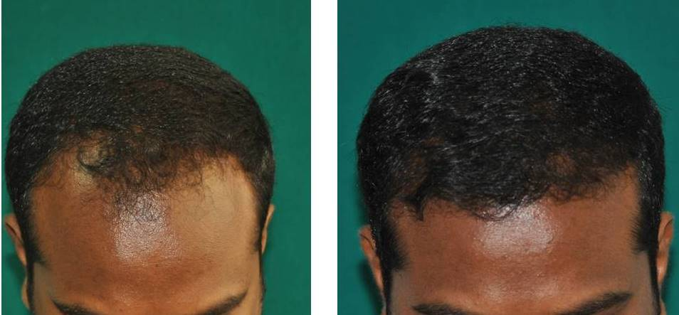 Best hair transplant in Kerala before after