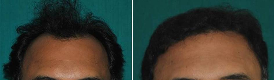 Hair replantation in Kerala result photo