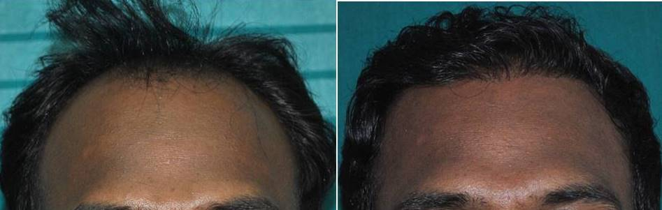 Photo of hair transplant in Ernakulam result