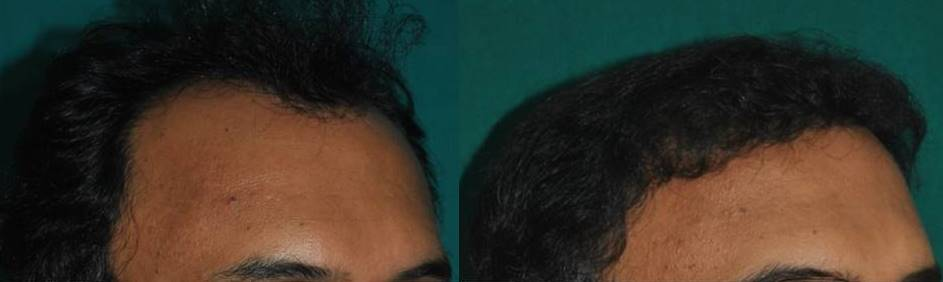Hair transplant result Kerala, India