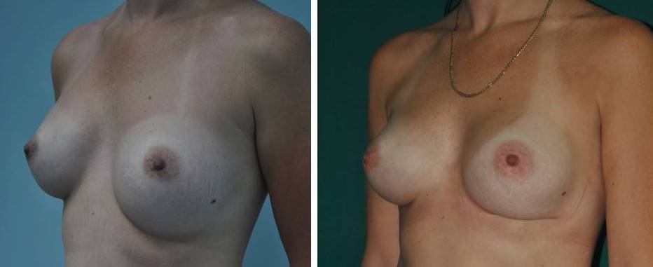 Revision surgery for previous breast implants