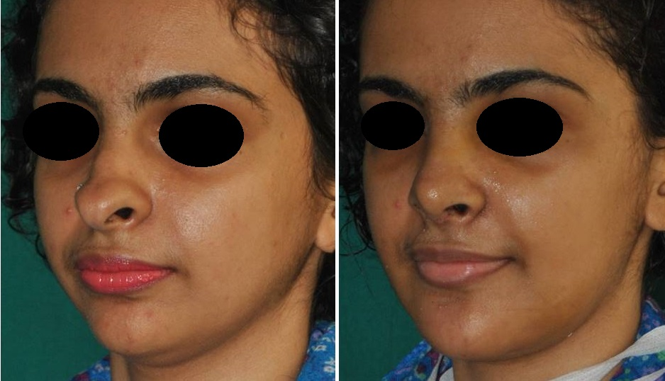 Rhinoplasty and chin implant surgery in Kerala