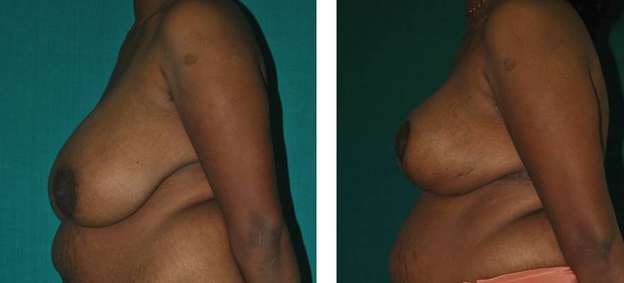 Breast reduction and lift in Kerala