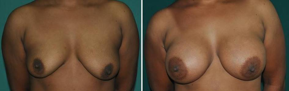 Result of silicone implant for breast in India