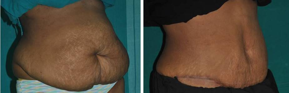 Tummy shaping after pregnancy in Kerala