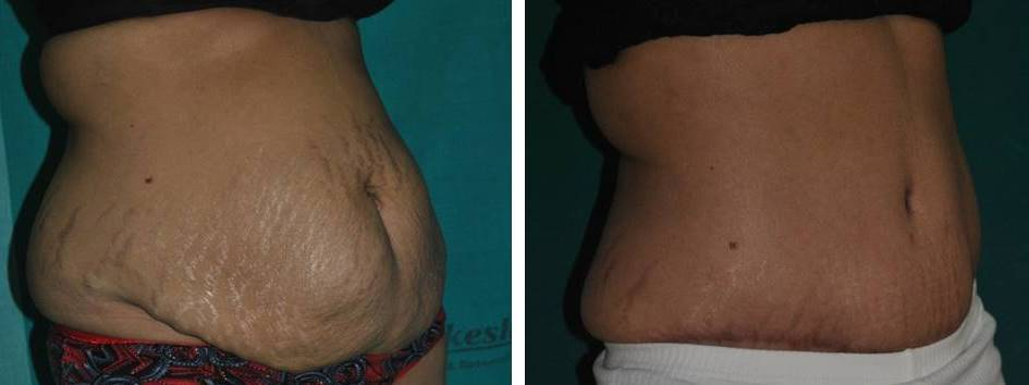 Tummy tuck with ventral hernia repair