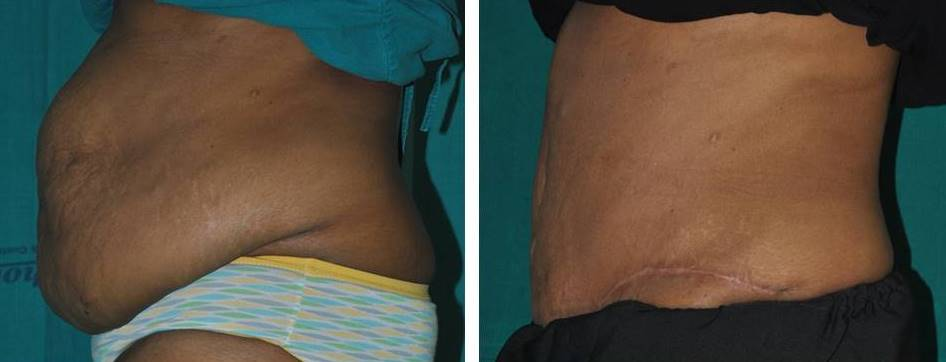Tummy tuck surgery in India best result
