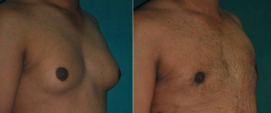 Male chest liposuction in Ernakulam