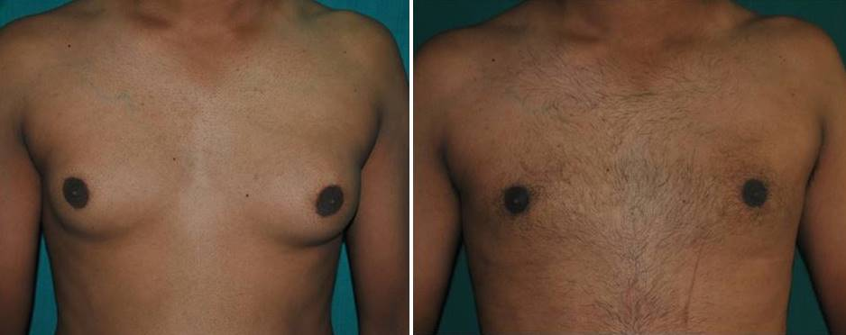 Chest fat liposuction in Kerala