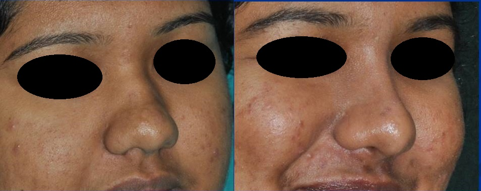 Rhinoplasty in Kerala, India