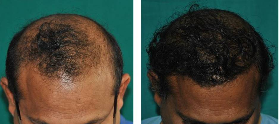 Hair transplant for front zone