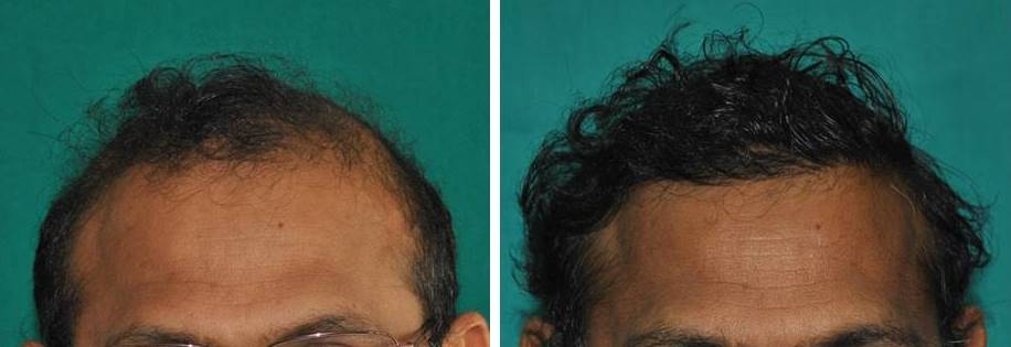 Hair transplant result in India