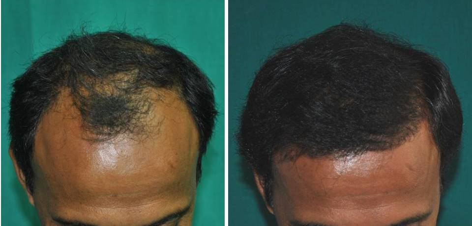 Kerala Hair transplantation result